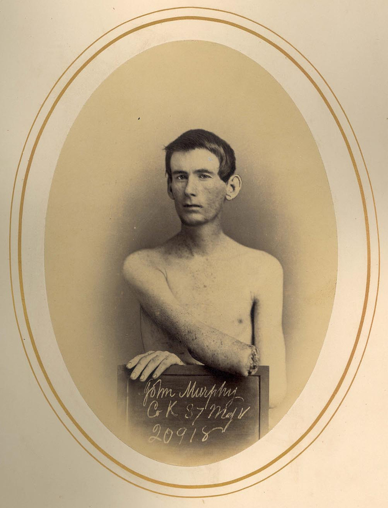 """Amputation of Forearm"". Pvt. John Murphy, Co. K, 37 Massachusetts Volunteers. Wounded at Battle of Harper's Farm, VA on April 6, 1865. Treated by Dr. Reed Bontecou at Harewood Hospital, Washington, DC who had the photograph taken."