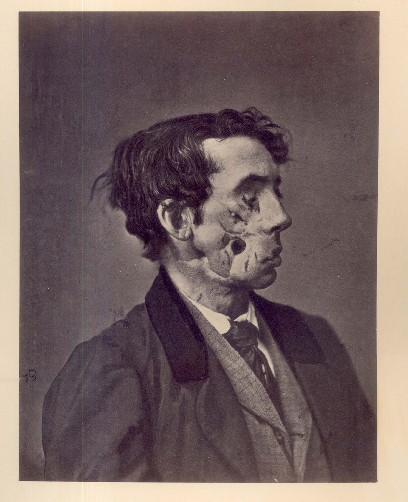 The text on the back of the photo reads: Private Joseph Harvey, C, 149th New York, was wounded at the battle of Chancellorsville, May 3, 1863, by a fragment of shell. The right eye was destroyed, the right superior maxilla was fractured, a fragment was chipped off the lower jaw, and the right cheek was frightfully lacerated. The prisoner fell into the hands of the enemy, and remained a prisoner eleven days. In the middle of June, 1863, he was admitted into Mansion House Hospital, at Alexandria. In August, portions of exfoliated bone were removed. A ferrotype, representing the apperance of the wound at this date, was forwarded to the Army Medical Museum. On May 7, 1865, Harvey was discharged from service on account of physical disability. He was subsequently employed as a night-watchman at the Commissary Hospital in Alexandria. The photograph was taken June 22, 1865. The loss of substance in the cheek was still unrepaired, and liquids and saliva escaped frrom it. There was slight deafness and partial facial paralysis on the right side. This soldier was pensioned, and his death, from cause not known, was reported Decmber 9, 1868